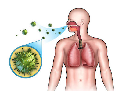 Is viral bronchitis contagious?