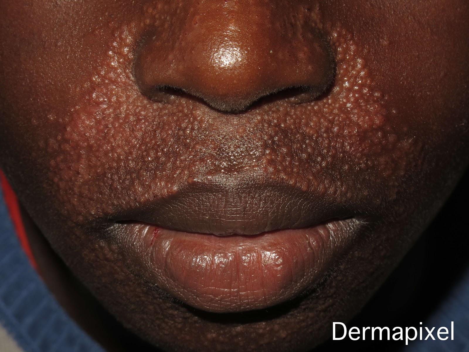 Un acné muy extraño