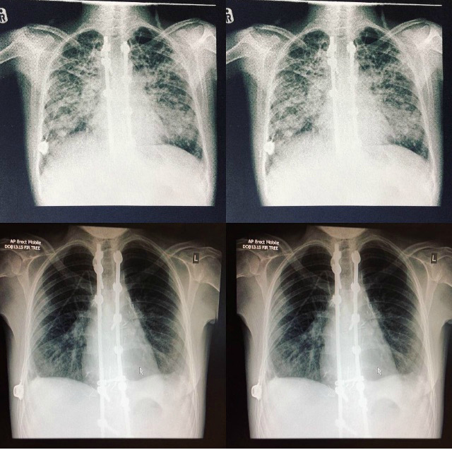 cystic fibrosis lung transplant, cystic fibrosis lung transplant x ray, cystic fibrosis blog, cystic fibrosis transplant blog, transplant before and after,