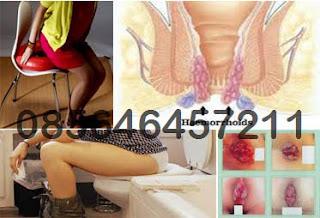 Ciri Ciri Wasir (Hemoroid) Hampir Sembuh