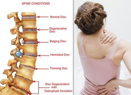 Cara Ampuh Mengatasi Sakit Pinggang