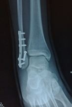Broken Ankle X-Ray
