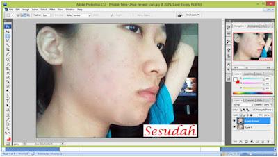 Tips Menghilangkan Jerawat Menggunakan Photoshop