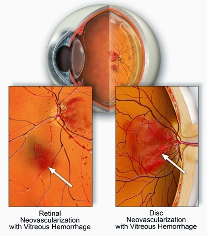 acuitatea vizuală cu edem macular)