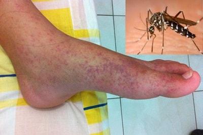 Cara Mudah Mengobati Chikungunya