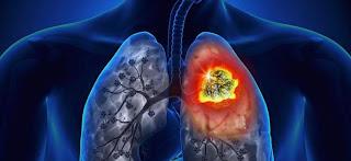 El cáncer de pulmón afecta más a hombres