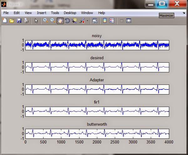 Acoustic echo cancellation algorithm 7 implementation using dsp