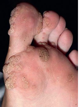 Fig. 5.48 Warts in DOCK8 immunodeficiency