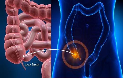 Apakah anda sering mengalami sakit perut sebelah kanan ? Mungkinkah itu petanda gejala usus buntu ? Pertanyaan anda akan dibahas pada artikel ini.