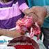Sadis! Budak Hancur Pergelangan Tangan Akibat Bermain Mercun (3 Gambar)