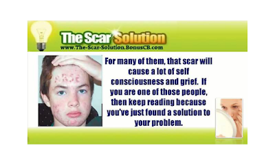 the scar solution reviews, the scar solution book reviews, the scar solution ebook download, the scar solution pdf,