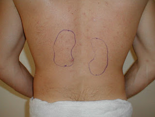 Kidney Pain Location Symptoms Causes Diagnosis