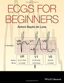 Download ebook medicine pdf free Ecgs For Beginners