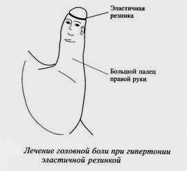 лечение головной боли при гипертонии эластичной резинкой