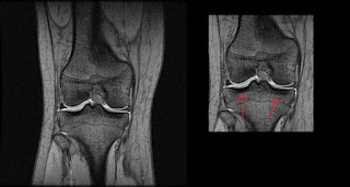 How to read an MRI right knee front view resonata magnetica ACL tear break ligament