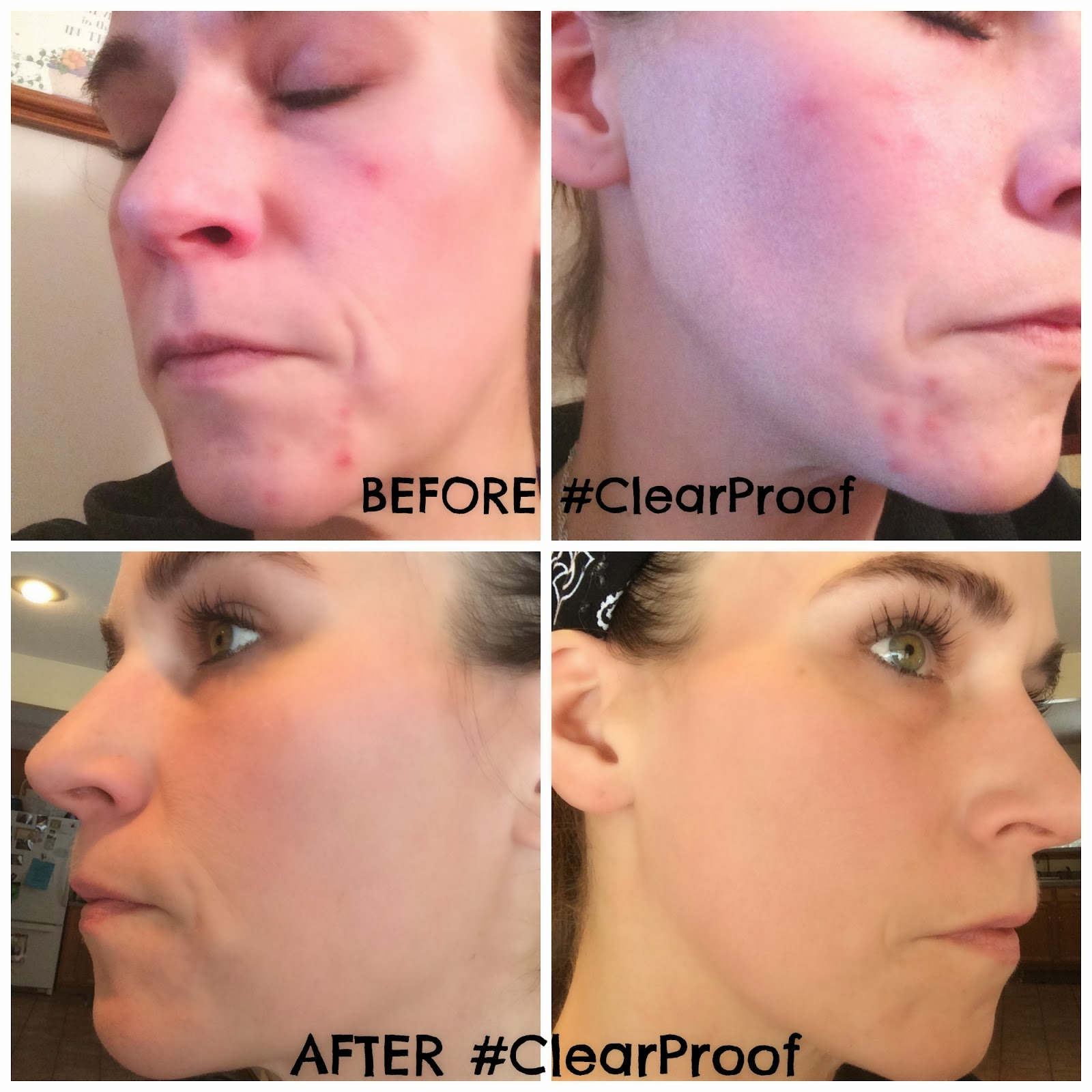 Mary Kay Clear Proof Acne System Review Clearproof November 2014