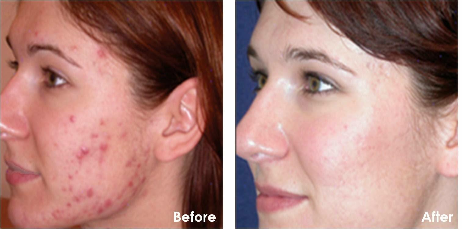 Treat Acne Using Photodynamic Therapy | Harley Street Skin Clinic