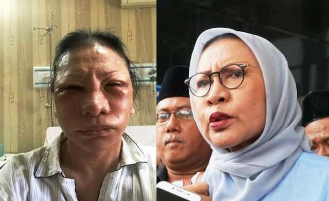 Kubu Prabowo Babak Belur Atas Penyebaran Hoax Ratna Sarumpaet