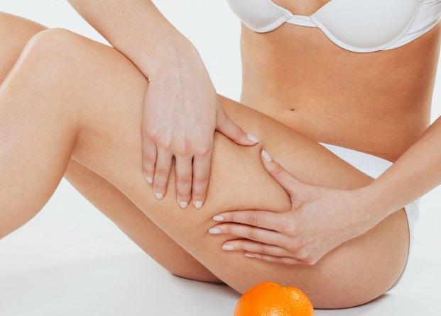 2. Celulitis y flacidez