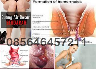 Gejala, Tanda dan Ciri-Ciri Wasir (Hemoroid)