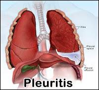 Obat Tradisional Menyembuhkan Pleuritis