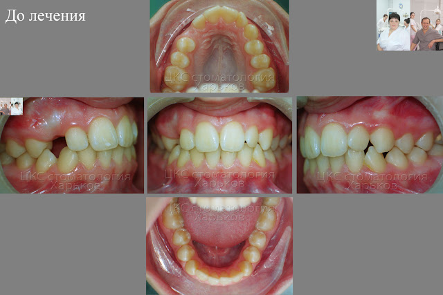 Ретинированный зуб, ситуация до лечения
