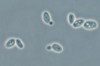 Yeast under Phase contrast microscope