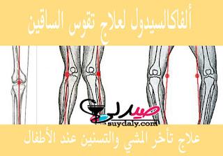 الفاكالسيدول لعلاج تقوس الساقين وتأخر المشي والتسنين