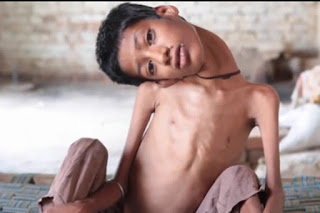 Kasihan Sekali Anak Ini, Lehernya Tidak Bisa Tegak dan Selalu Terkulai