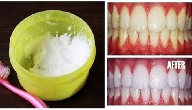 Cara Memutihkan Gigi Mudah Brad Erva Doce Info