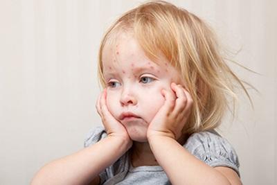 Obat Cacar Air Tradisional untuk Anak
