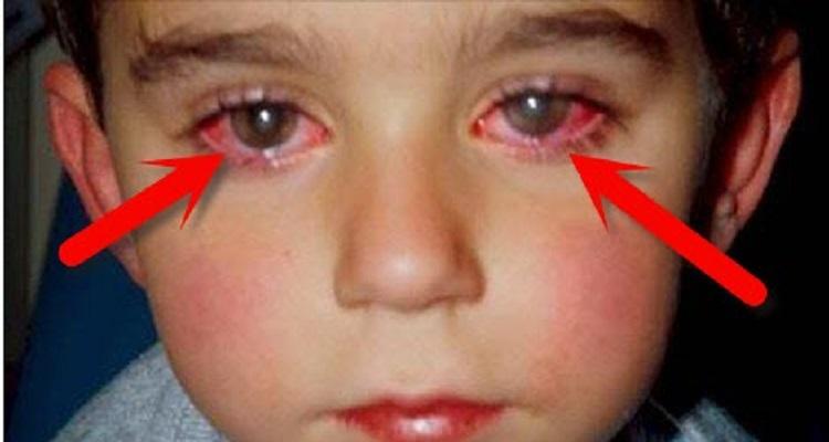 طفل فقد 75 بالمئة من نظره بسبب لعبة تتواجد في كل البيوت