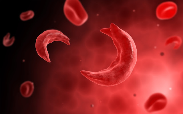 Sickle Cell Disease, Causes, Symptoms and Treatment