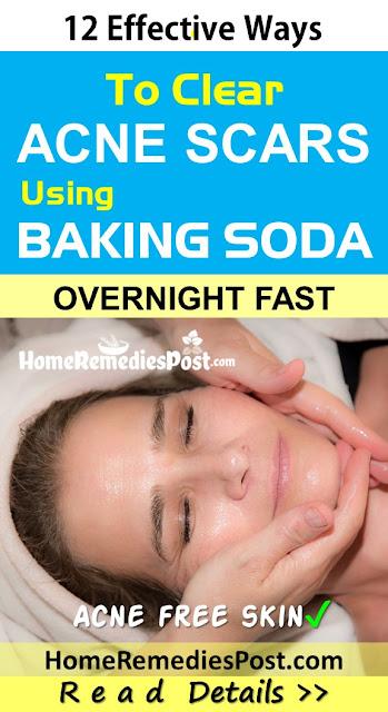 Baking Soda For Acne Scars, Baking Soda Acne Scars, Is Baking Soda Good For Acne Scars, How To Use Baking Soda For Acne Scars, Baking Soda And Acne Scars, Does Baking Soda Help Acne Scars