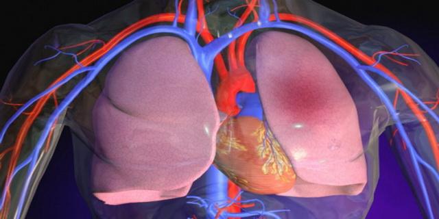 vindeca natural tromboembolismul pulmonar