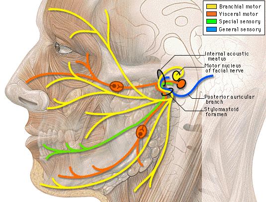 Buzzing In Ear >> Jill's Cochlear Implant Journey: What took so long?