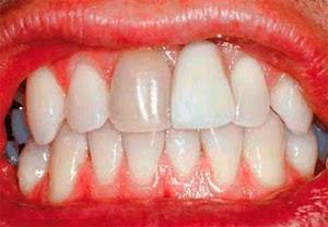 dientes oscuros