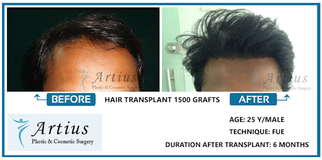 Hair Transplant in Navi Mumbai