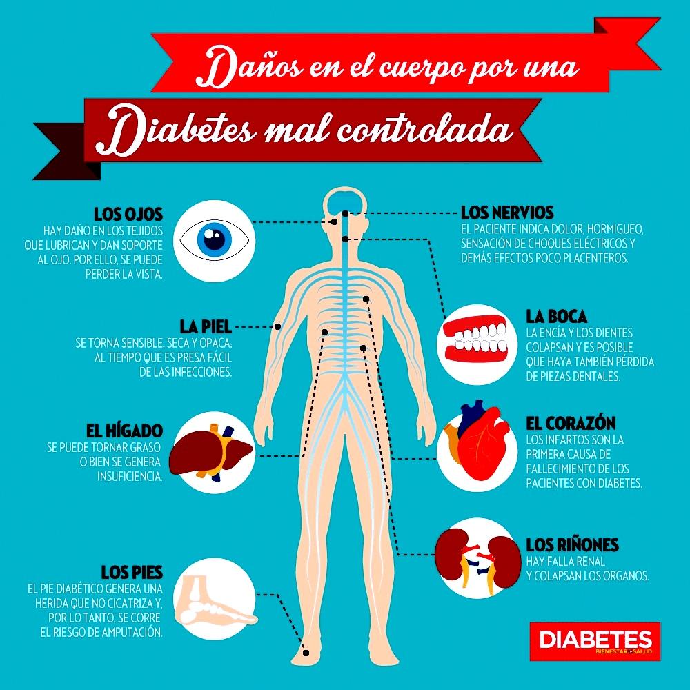 piel sensible al tacto diabetes