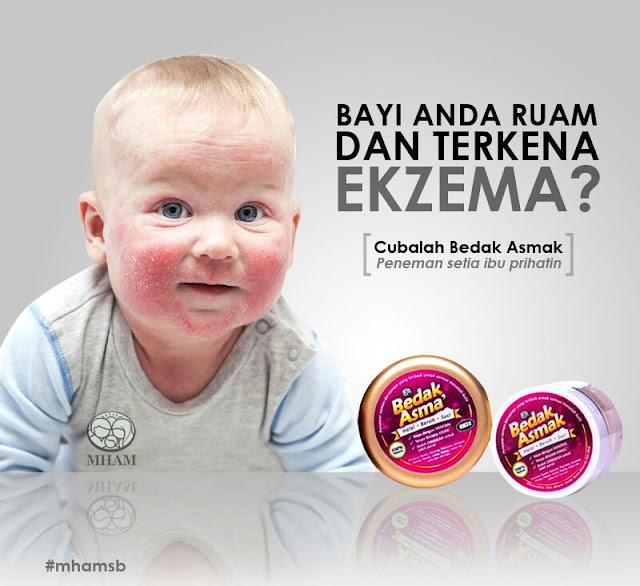 Bedak Asmak Membantu Merawat Penyakit Kulit Ekzema, Ruam Dan Psoriasis Pada Bayi