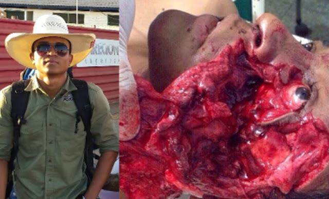 Estudante tem o rosto desfigura por touro de 300 kg durante treino de montaria em Rondônia