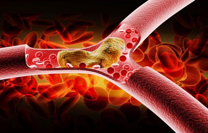 Makanan Pantangan Kolesterol
