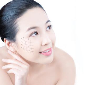 Căng da mặt không phẫu thuật bằng công nghệ Thermagic Lift
