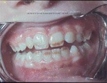 """<Img src =""""cambios-esmalte-de-los-dientes-por-fluorosis.jpg"""" width = """"220"""" height """"172"""" border = """"0"""" alt = """"Manchas en el esmalte por fluorosis."""">"""