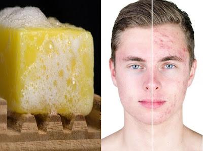 Le savon au soufre et ses bienfaits lors de l'utilisation