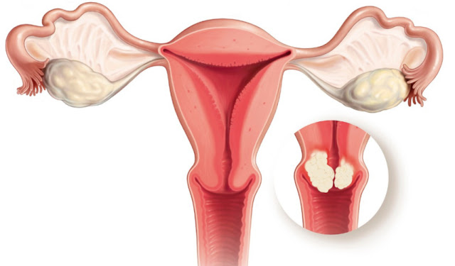 Uterine Cancer Survival Rate Based On Their Stage Of Cancer