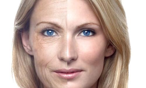 Ternyata Ini Penyebab Penuaan Dini Pada Wajah