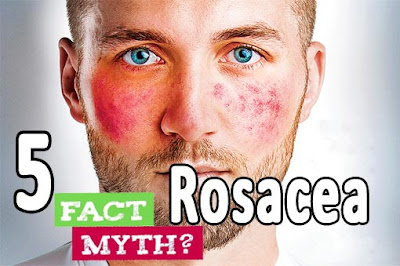 5 Myths About Rosacea