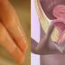 Suami Istri Wajib Baca! Dokter Melarang Memasukan Jari Anda ke Dalam Organ Pribadi Pasangan. Dr Boyke: Penyakit Mematikan Ini yang Akan Datang!!