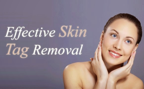 Best Home Remedies To Remove Skin Tags